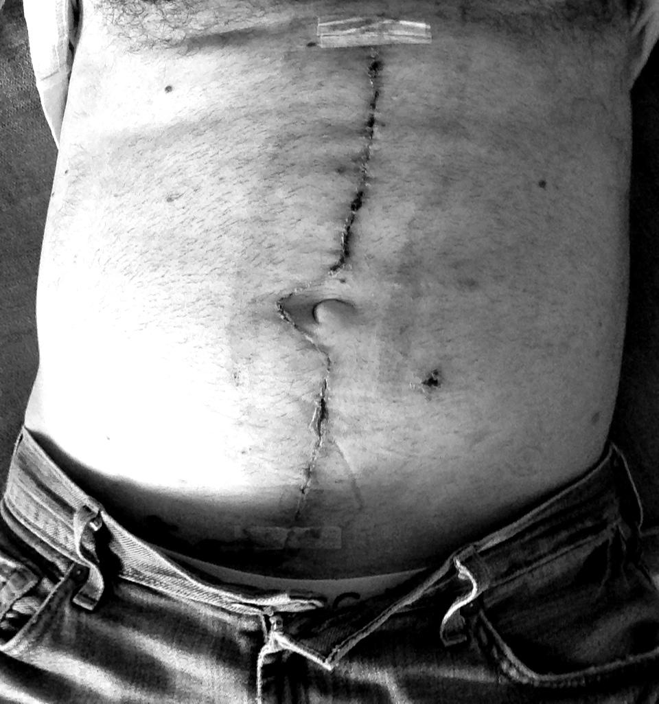 Lymph node surgery May 2013